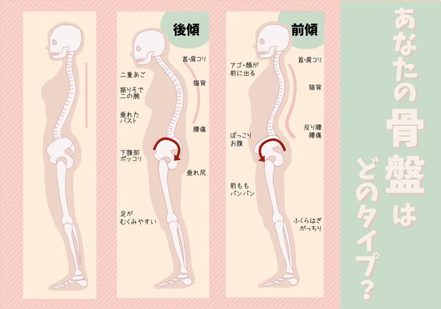当院では腰痛の人に腹筋運動を勧めていない理由があります。
